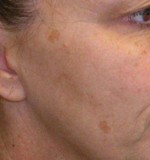 Natural Skin Lighteners For Age Spots